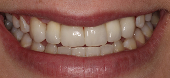 "After-[baslider name=""Case1ImplantCrown""]"