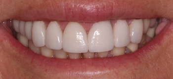 After-Case1SmileMakeOver