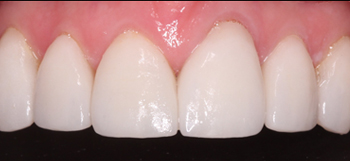 After-Case2SmileMakeOver