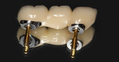 New Implant Bridge