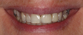After-Case2ImplantCrowns