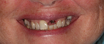 Before-Case2ImplantCrowns