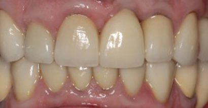Full Mouth Rehabilation new1